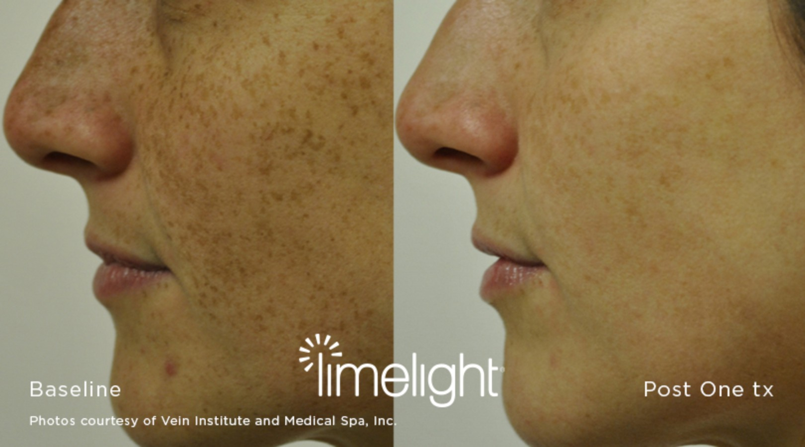 Limelight 174 Facial Imami Skin And Cosmetic Center