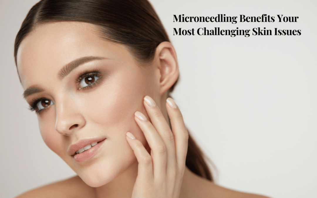 Microneedling Benefits Your Most Challenging Skin Issues